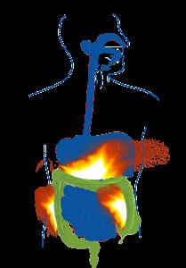 Colitis Ulcerosa ist eine chronische Entzündung des Darms